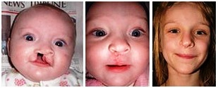 The girl 1 month after surgery and the same girl at 8 yrs of age