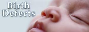 Birth-Defect-in-Child-300x108