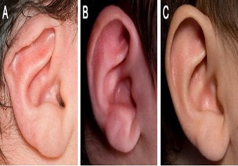 Ear-Defect-in-Child