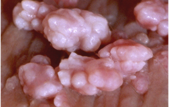 Genital Warts during Pregnancy