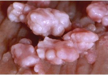 Genital Warts during Pregnancy